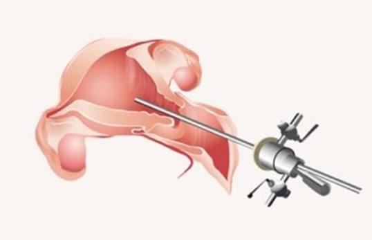 img-hysteroscopy-1.jpg